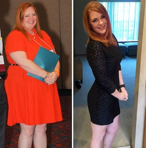 redhead before and after weight loss